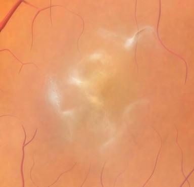 Epiretinal Membrane (macular pucker)