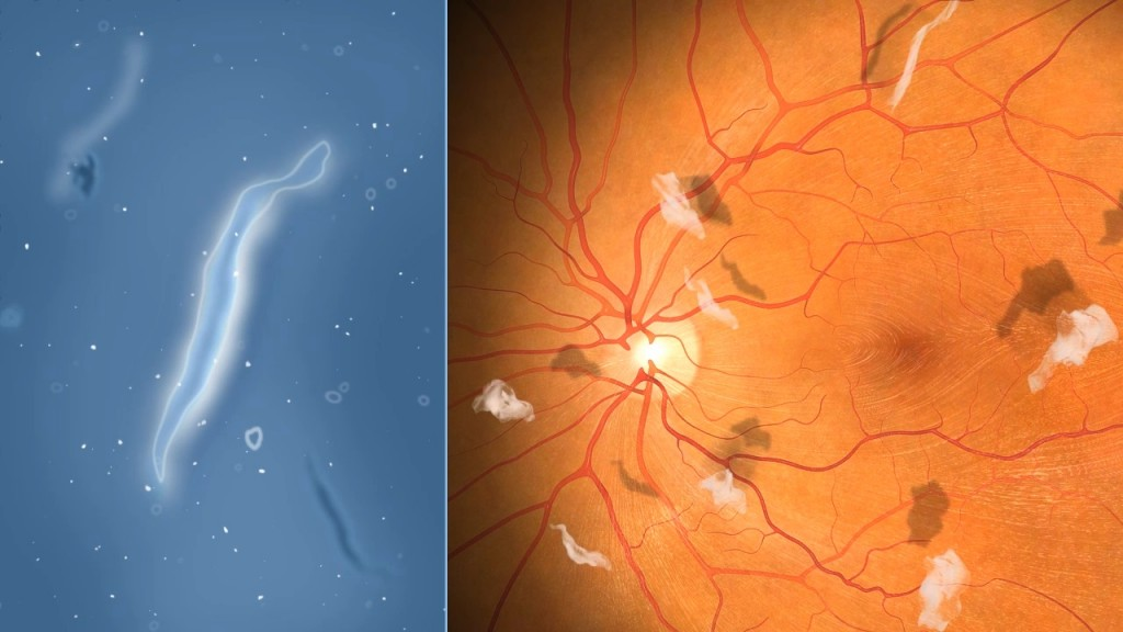 eye floaters & black spots in vision | retina doctor, Skeleton