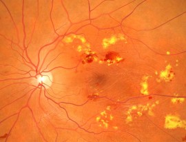Intravitreal Injections for Diabetic Macular Oedema
