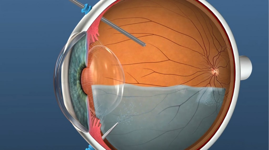 Post Vitrectomy Recovery And Posturing Retina Doctor