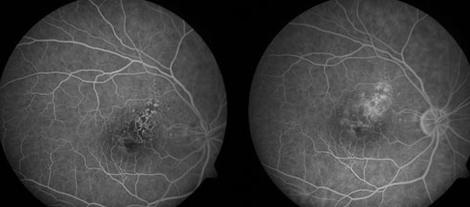 What Is Non-proliferative Diabetic Retinopathy (NPDR)?
