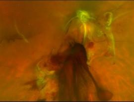 Vitrectomy for Vitreous Haemorrhage