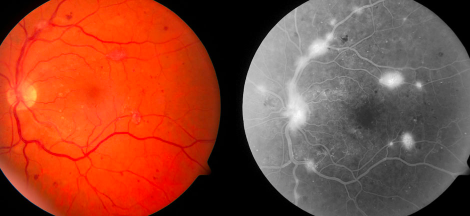 What Is Proliferative Diabetic Retinopathy?