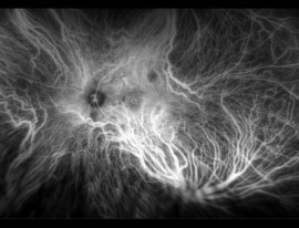Fluorescein & ICG Angiography