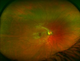 Wide Field Retinal Photography