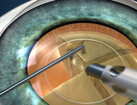 Combined Surgery for Epiretinal Membrane