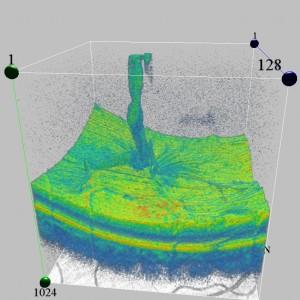 3D OCT Adhesion