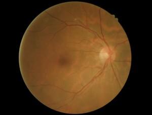 Branch retinal artery occlusion