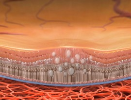 Intravitreal steroid injections