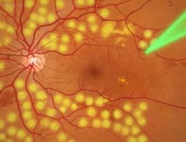 Retinal Laser Treatment