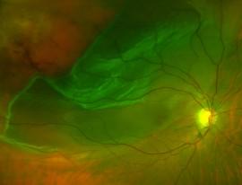 Vitrectomy for retinal detachment