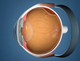 Cryo-buckle Retinal Detachment Surgery