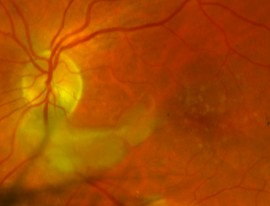 Retinal Artery Occlusion (BRAO or CRAO)