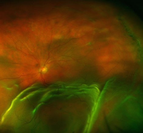 How do retinal detachments develop?
