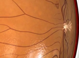Vitrectomy for Vitreomacular Traction Syndrome